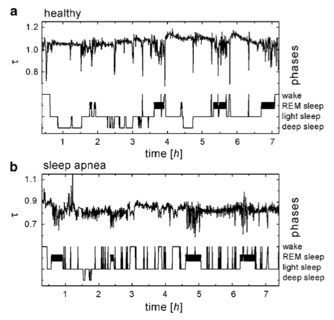 Sleep phases and HRV